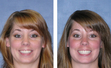 Happy Patient After Invisalign