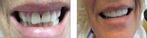 Kori & Everhart Advanced Dentistry - Image of before and after case - 02