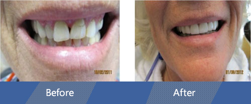 Cosmetic Veneers and Dental Crowns Before and after case 2