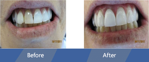 Cosmetic Veneers and Dental Crowns Before and after case 3