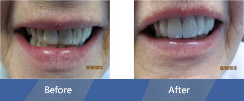 Cosmetic Veneers and Dental Crowns Before and after case 4