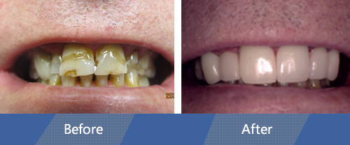 Cosmetic Veneers and Dental Crowns Before and after case 6