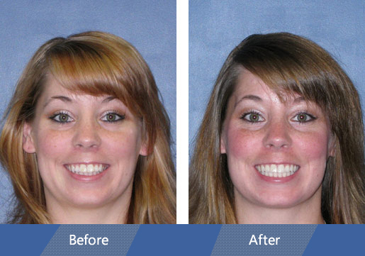 Invisalign Before and After Case 5