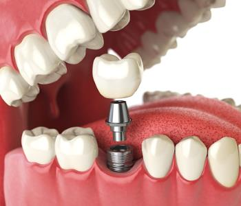 Franklin, OH, dentist helps patients find a permanent tooth replacement solution with dental implants