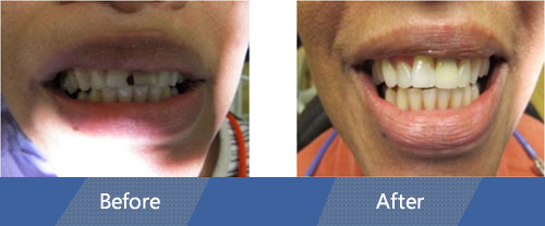 Dental Bonding Before and After Case 01