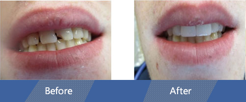 Dental Bonding Before and After Case 02