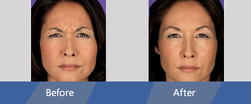 Botox and Dermal Fillers Before and After Case 01