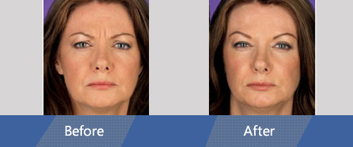 Botox and Dermal Fillers Before and After Case 03
