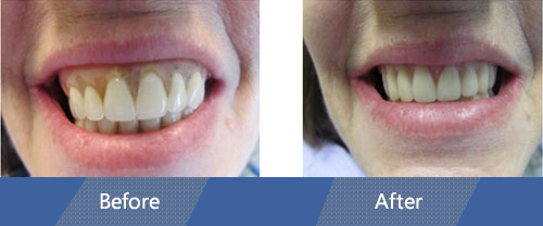 Implant Retained Dentures Before and After Case 01