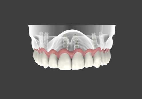 3D rendering implantat