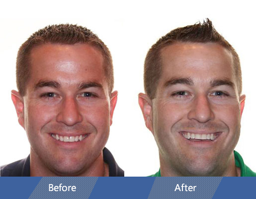 Invisalign Before and After Case 01