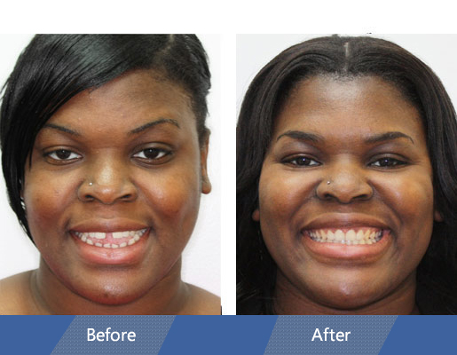 Invisalign Before and After Case 04