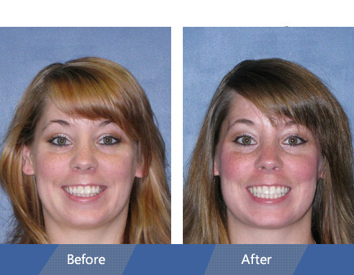 Invisalign Before and After Case 05