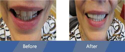 Snap On Smile Before and After Case 01
