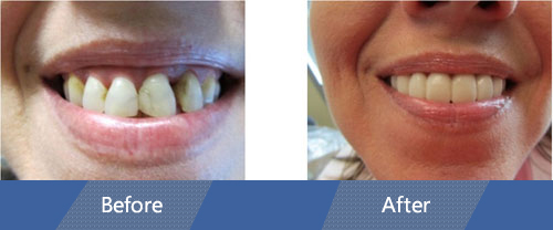 Snap On Smile Before and After Case 02