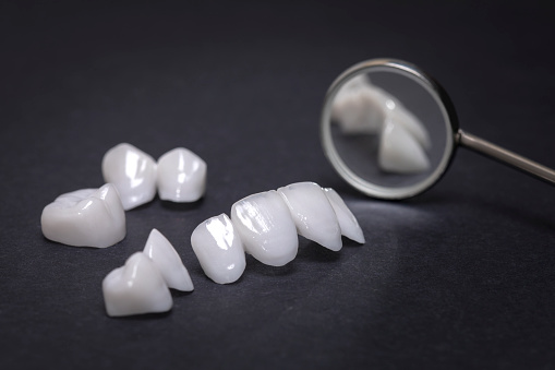 Dental mirror with zircon dentures on a dark background - Ceramic veneers - lumineers