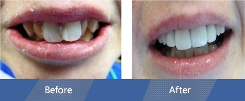 Cosmetic Veneers Before and After Case 02