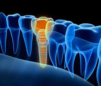 Learn about the replacement of missing teeth with dental implants in Franklin, OH