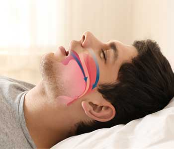 Treatment and solutions for snoring and obstructive sleep apnea for patients in Franklin, OH