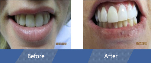 cosmetic veneers and dental crowns Case 01