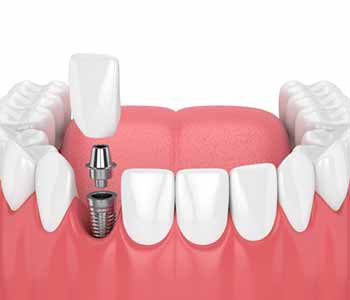 Dentist in Franklin, OH describes the advantages of placing dental implants