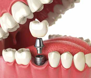 How are dental implants used - Franklin, OH Dentist