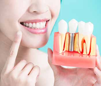 Purpose of a single dental implant treatment