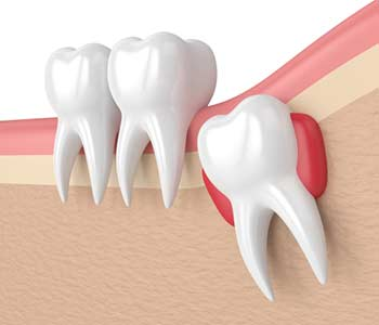 Wisdom tooth removal and other extractions available with Franklin, OH area dentists