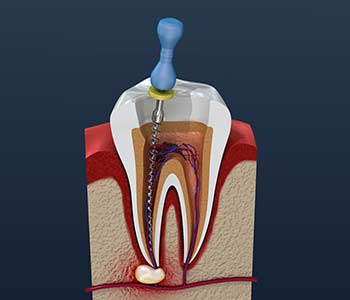 Dentist in Franklin, OH explains the purpose and benefits of root canal treatment
