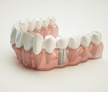 Permanent dental implants restore missing teeth in Franklin, OH