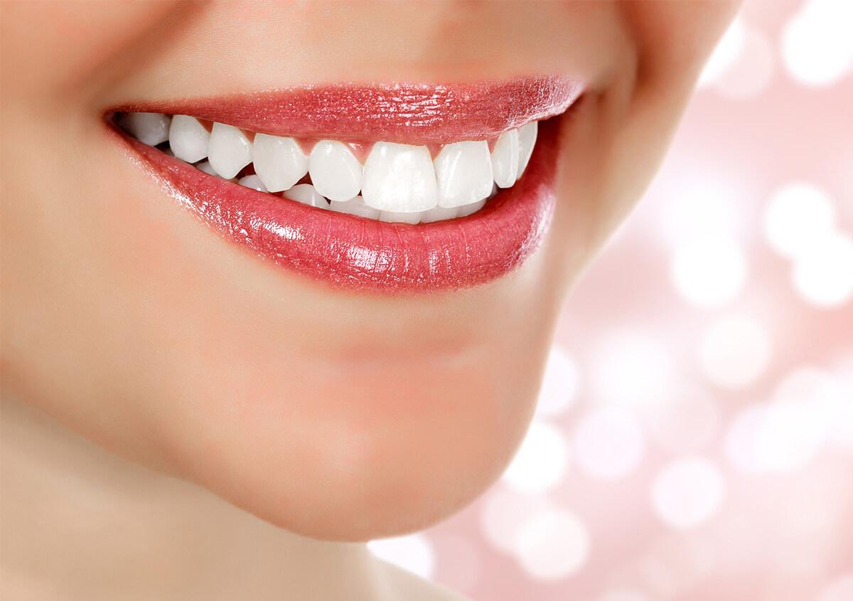 Cosmetic veneers and dental crowns