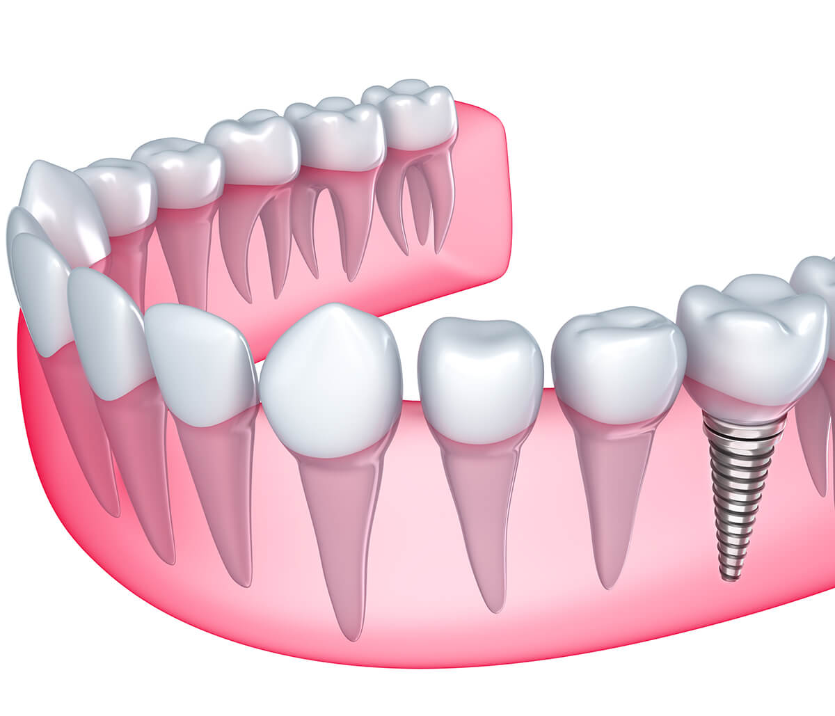 Franklin area dentist describes the dental implant procedure for replacing a missing tooth