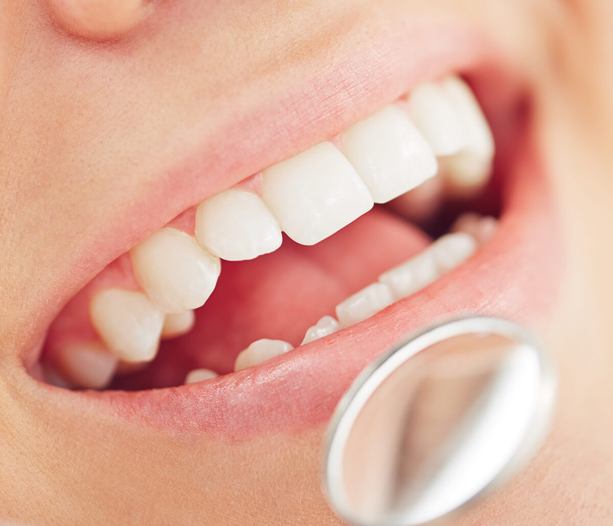 Keep Your Smile With Cosmetic Dental Treatments in Franklin Area